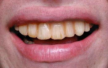 Gammel Veneer Teeth