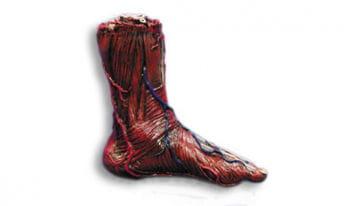 Skinned left foot