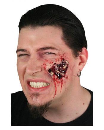 Madenfrass wound